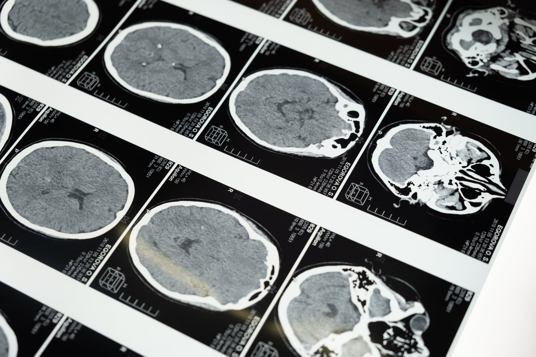 Film images of a brain scan